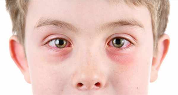Мальчик с аллергическим конъюктивитом