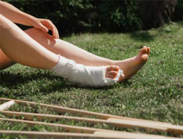 Ноги ребенка, одна загипсована, рядом лежат костыли