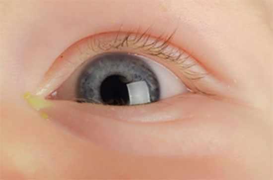 Глаз ребенка, с которого выделяется желтоватое вещество