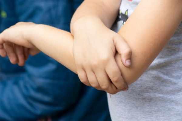 Ребенок держится за свой локоть
