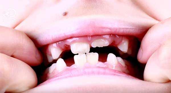 У ребенка выпадают зубы
