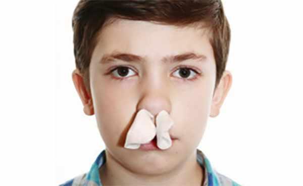 Мальчик с тампонацией носа