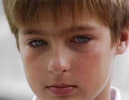У мальчика воспалены глаза