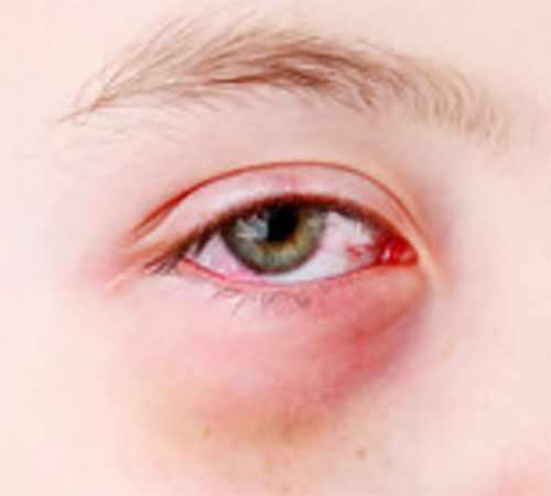 Аллергический конъюнктивит, снимок глаза ребенка