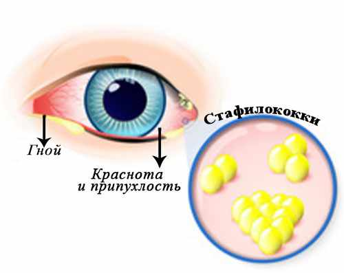 Инфицированный глаз и увеличенное изображение стрептококков