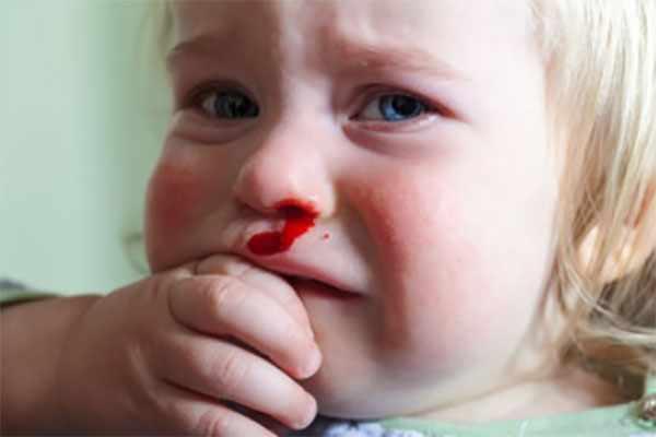У девочки идет кровь из носа