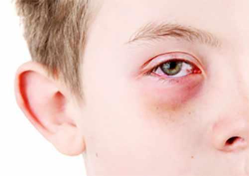 Мальчик с признаками аллергического конъюктивита