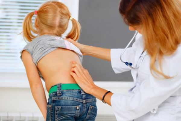 Доктор осматривает наклоненную спину девочки