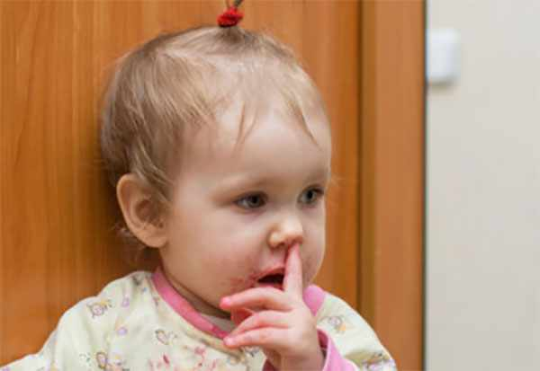 Девочка ковыряется в носу, с носика идет кровь