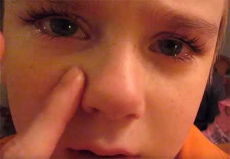 Мальчик с возможным переломом носа. Мама ощупывает носик.