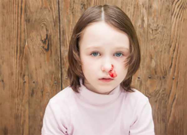 Девочка с носовым кровотечением