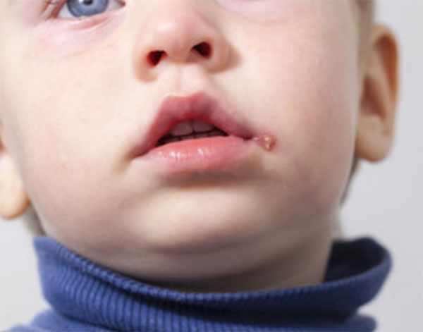 Герпетический стоматит у ребенка
