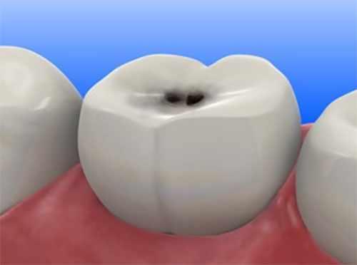 Зуб с почерневшим участком на поверхности