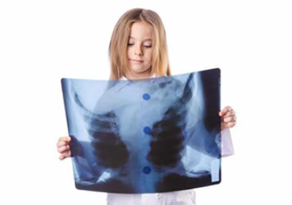Девочка рассматривает рентгеновский снимок