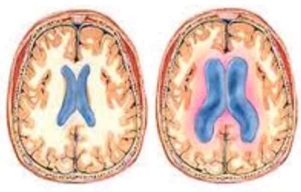 Изображения здорового мозга и мозга с гидроцефалией. Поперечный разрез