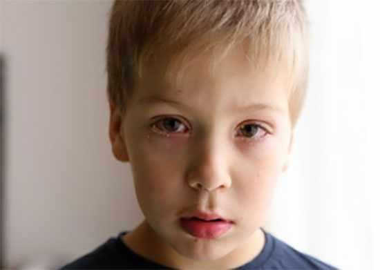 Мальчик с бактериальным конъюнктивитом