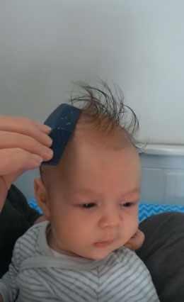 Мама убирает корочки с головы ребенка