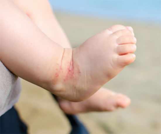 Ножка ребенка с поражением кожи