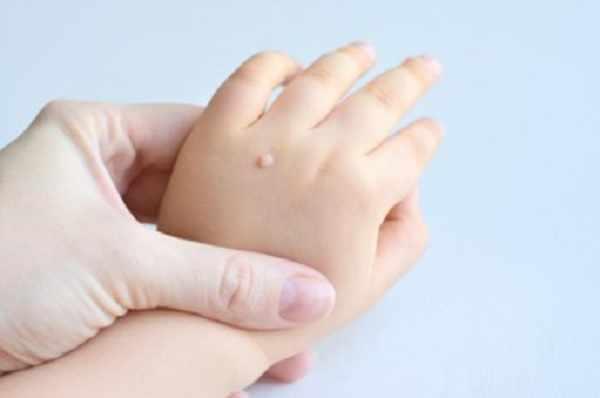 Бородавка на руке у ребенка