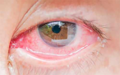 Глаз, пораженный вирусной инфекцией