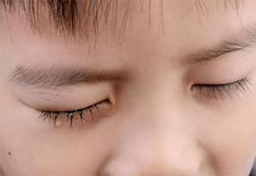 У ребенка слезится один глаз
