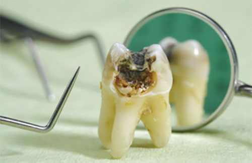 Удаленный зуб с сильными проявлениями кариеса