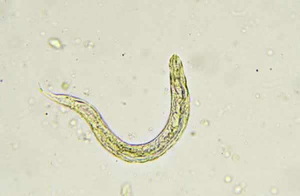Увеличенное изображение острицы под микроскопом