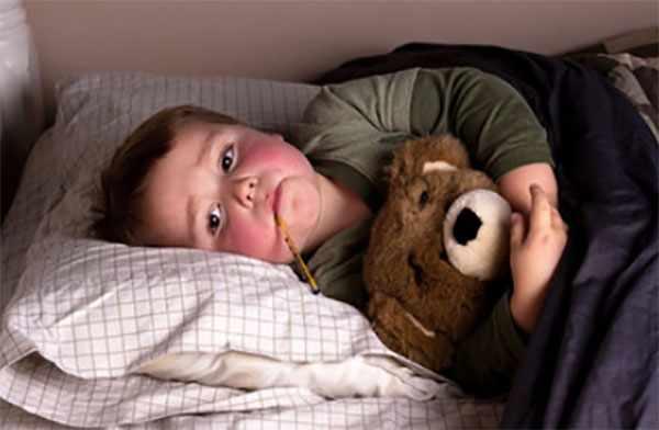 Ребенок с градусником во рту лежит в постели. Щечки очень красные