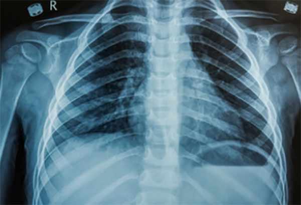 Рентген грудной клетки ребенка