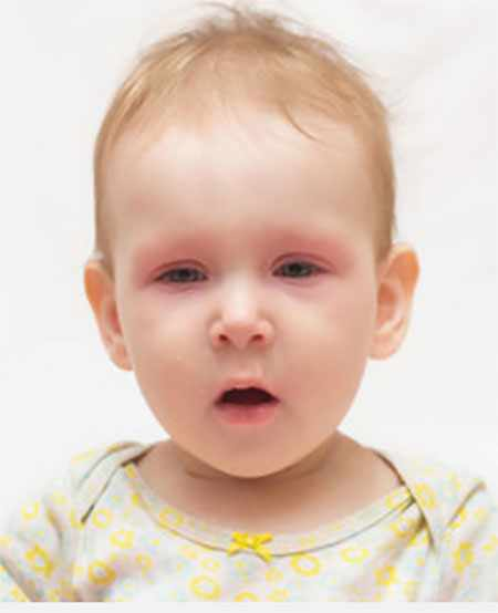 Ребенок с признаками аллергической реакции на лице