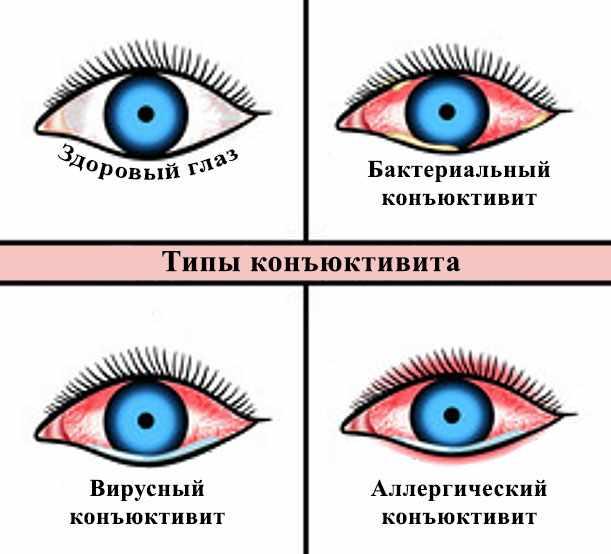 Картинка, на которой изображены здоровый глаз, а также с бактериальным, вирусным и аллергическим конъюнктивитом