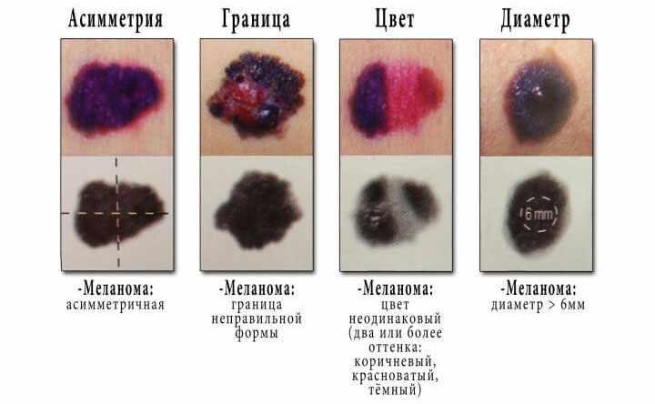 Признаки меланомы у ребенка