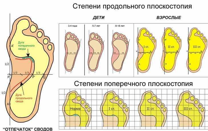 Таблица с видами плоскостопия