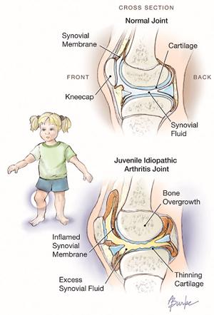 Ювенальный артрит схема