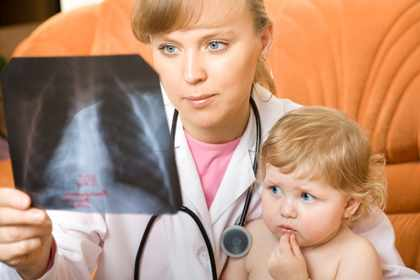 Врач смотрит рентген легких малыша