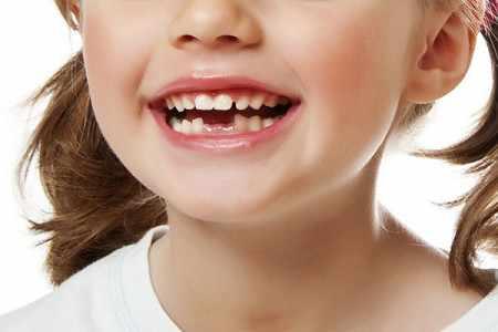 Выпали первые молочные зубы